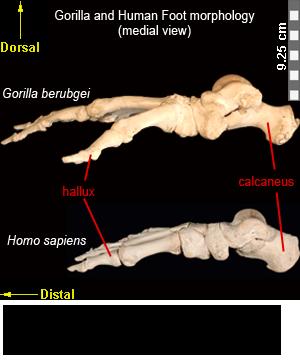distal femur anatomy Book Covers